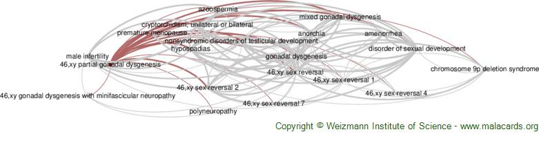 Diseases related to 46,xy Partial Gonadal Dysgenesis