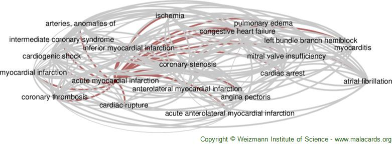 Diseases related to Acute Myocardial Infarction