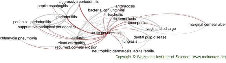 Diseases related to Acute Pericementitis