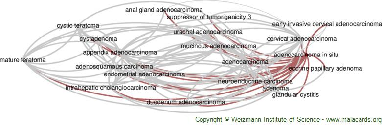 Diseases related to Adenocarcinoma in Situ