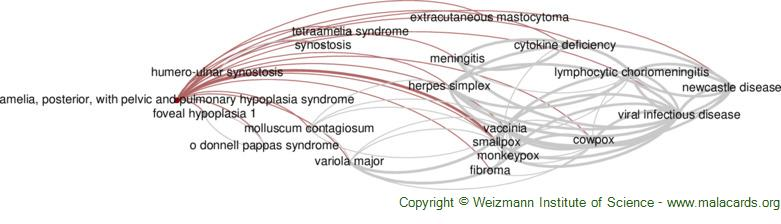 Diseases related to Amelia, Posterior, with Pelvic and Pulmonary Hypoplasia Syndrome