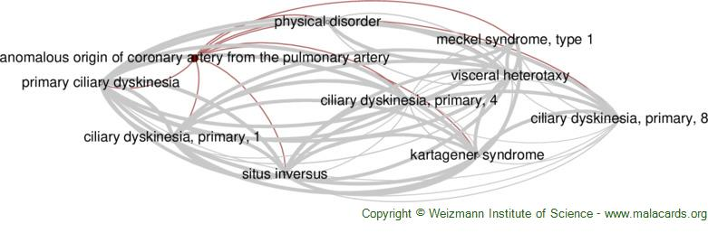Diseases related to Anomalous Origin of Coronary Artery from the Pulmonary Artery