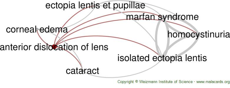 Diseases related to Anterior Dislocation of Lens