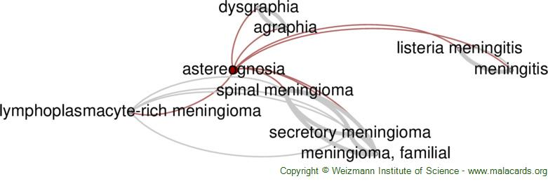 Diseases related to Astereognosia