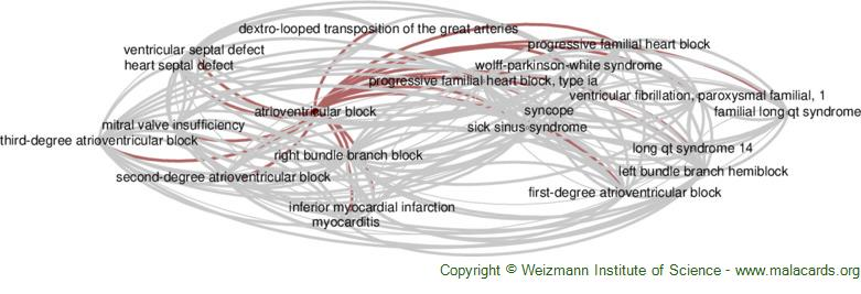 Diseases related to Atrioventricular Block
