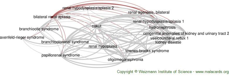 Diseases related to Bilateral Renal Aplasia