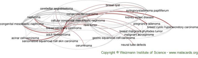 Diseases related to Breast Secretory Carcinoma