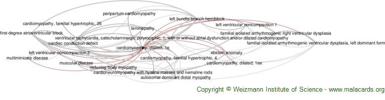 Diseases related to Cardiomyopathy, Dilated, 1e