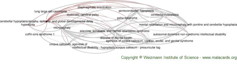 Diseases related to Cerebellar Hypoplasia/atrophy, Epilepsy, and Global Developmental Delay