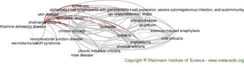 Diseases related to Cholinergic Urticaria