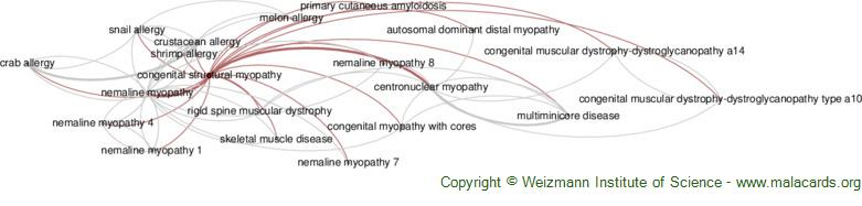 Diseases related to Congenital Structural Myopathy