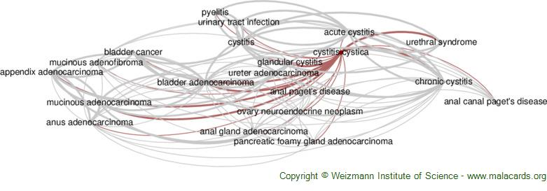 Diseases related to Cystitis Cystica