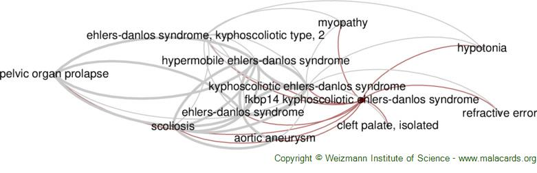 Diseases related to Fkbp14 Kyphoscoliotic Ehlers-Danlos Syndrome