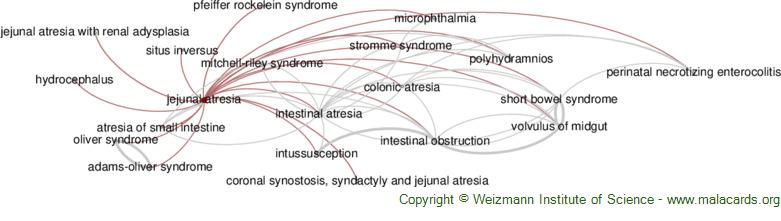 Diseases related to Jejunal Atresia