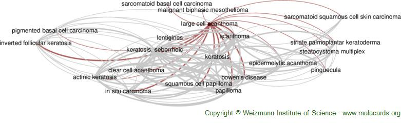Diseases related to Large Cell Acanthoma