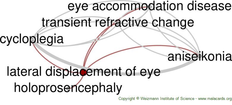 Diseases related to Lateral Displacement of Eye
