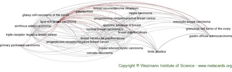 Diseases related to Lipid-Rich Breast Carcinoma