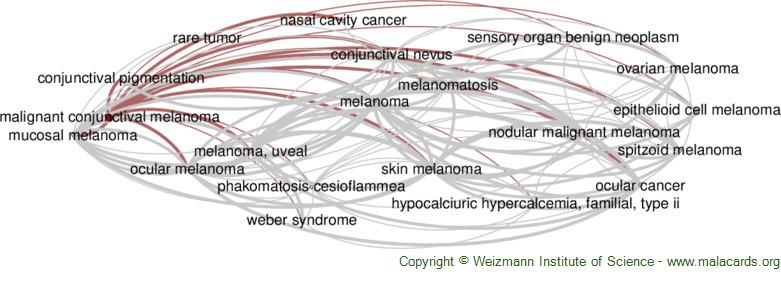 Diseases related to Malignant Conjunctival Melanoma