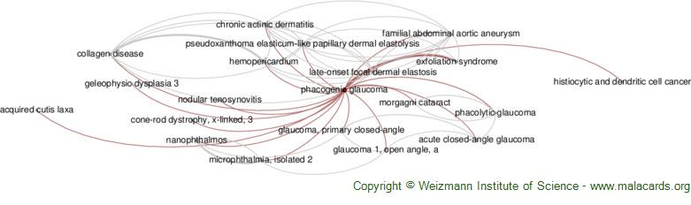 Diseases related to Phacogenic Glaucoma