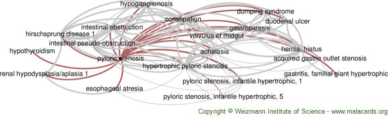 Diseases related to Pyloric Stenosis
