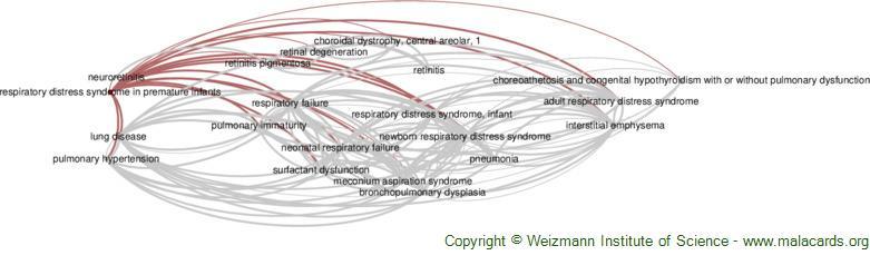 Diseases related to Respiratory Distress Syndrome in Premature Infants