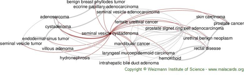 Diseases related to Seminal Vesicle Cystadenoma