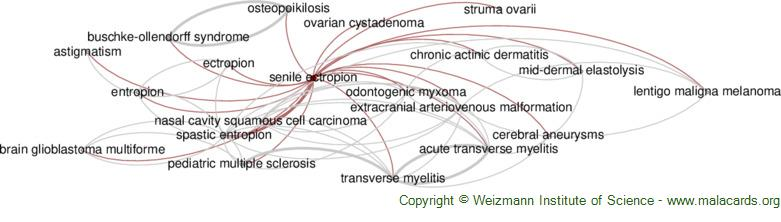 Diseases related to Senile Ectropion