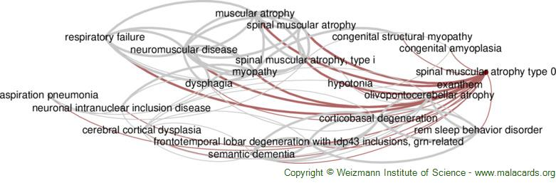 Diseases related to Spinal Muscular Atrophy Type 0
