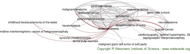 Diseases related to Teratocarcinoma