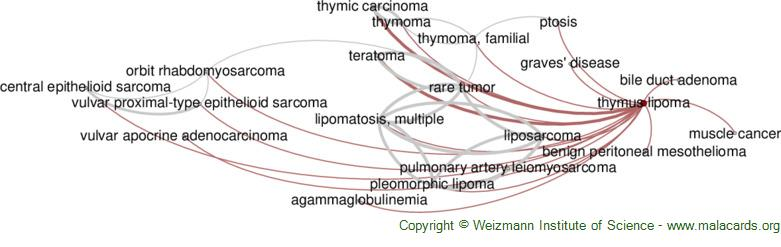 Diseases related to Thymus Lipoma