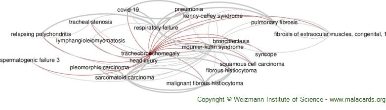 Diseases related to Tracheobronchomegaly