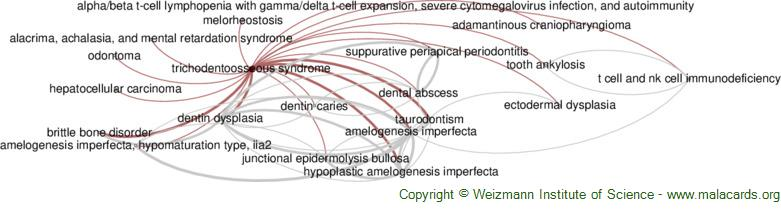 Diseases related to Trichodentoosseous Syndrome