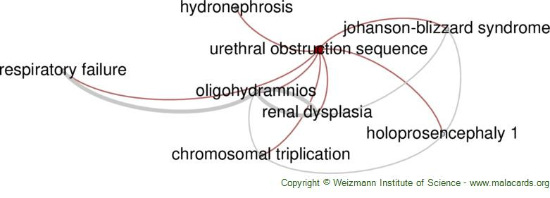 Diseases related to Urethral Obstruction Sequence