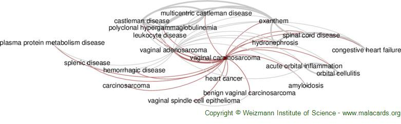 Diseases related to Vaginal Carcinosarcoma