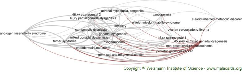 Diseases related to 45,x/46,xy Mixed Gonadal Dysgenesis