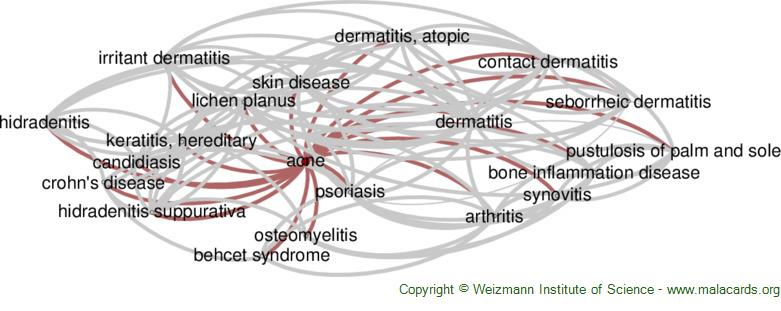 Diseases related to Acne