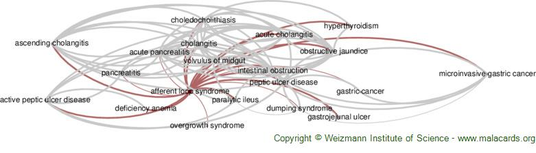 Diseases related to Afferent Loop Syndrome