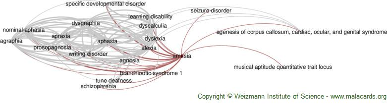 Diseases related to Amusia