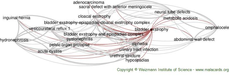 Diseases related to Bladder Exstrophy