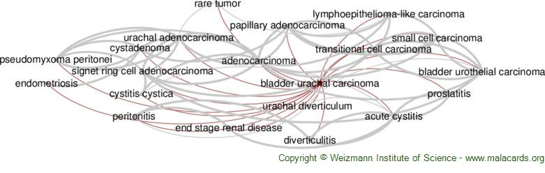Diseases related to Bladder Urachal Carcinoma