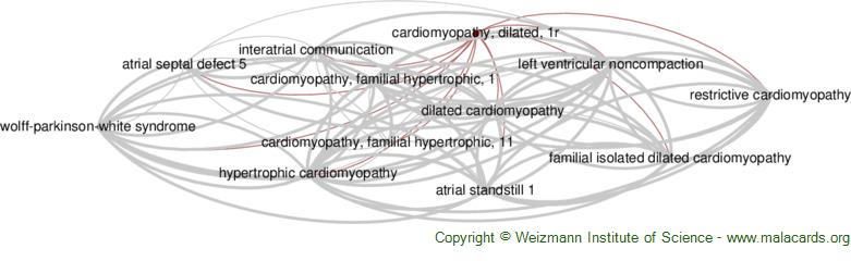 Diseases related to Cardiomyopathy, Dilated, 1r