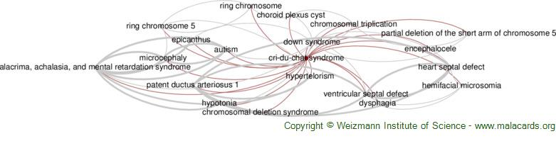 Diseases related to Cri-Du-Chat Syndrome