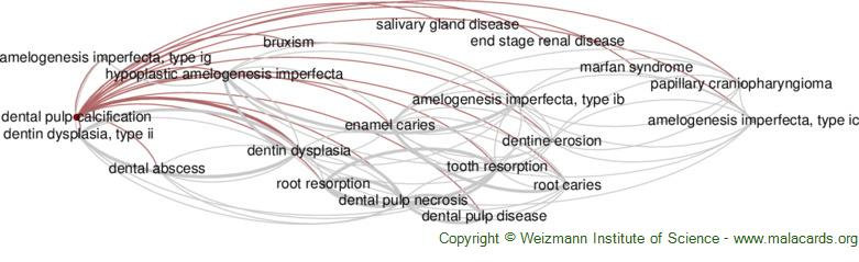 Diseases related to Dental Pulp Calcification