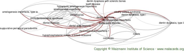 Diseases related to Dentin Dysplasia