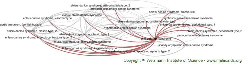 Diseases related to Ehlers-Danlos Syndrome