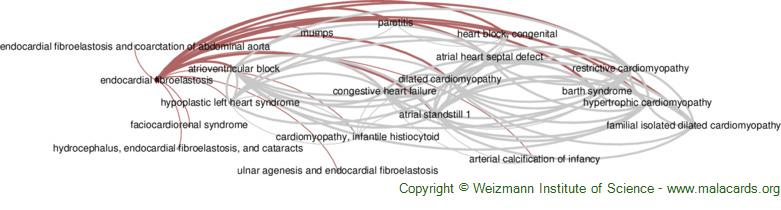 Diseases related to Endocardial Fibroelastosis