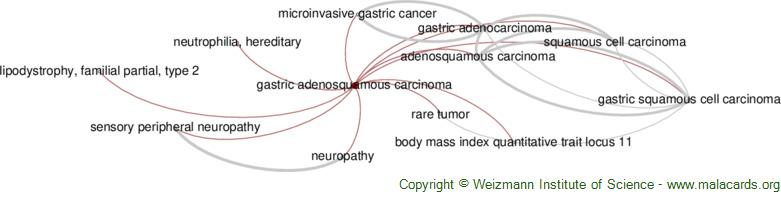 Diseases related to Gastric Adenosquamous Carcinoma