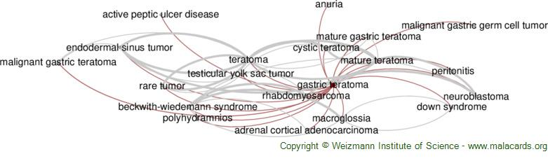 Diseases related to Gastric Teratoma