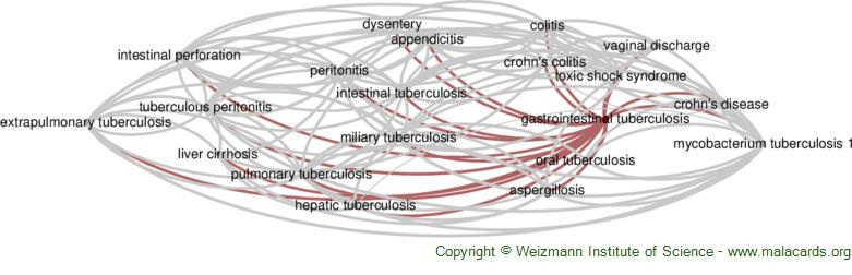 Diseases related to Gastrointestinal Tuberculosis
