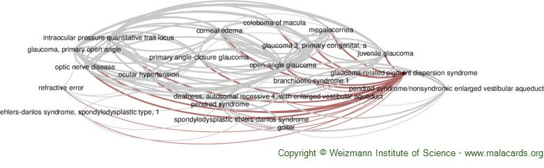 Diseases related to Glaucoma-Related Pigment Dispersion Syndrome